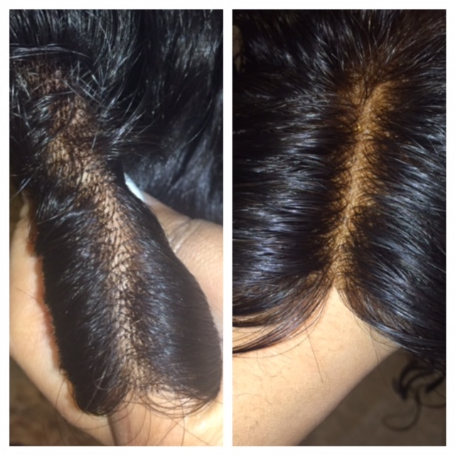 What are bleached knots and do I need them on my lace wig?